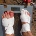 Want to avoid this during the marathon des sables read this http://www.myracekit.com/blog-article/healthy-feet-happy-running